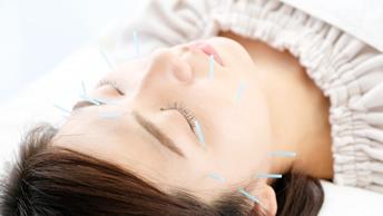写真:美容鍼灸(リフトアップ)
